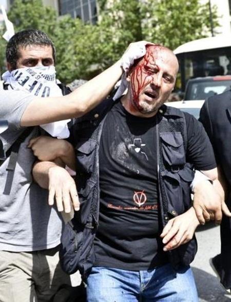 터키 탁심광장 시위, 5일간 잔혹한 현장의 흐름