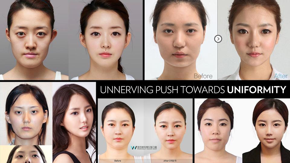 한국 여성에게, 성형수술은 도대체 무엇인가?