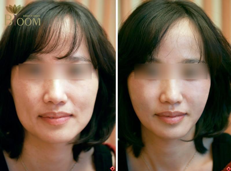 복합활용의 예: 눈밑을 채우고, 볼살을 줄이고, 턱선을 올렸다.