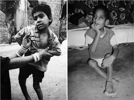 이 아이들은 지금까지도 고통 받고 있다.