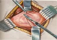 1736년 영국에서는 최초로 맹장염 수술이 실시됐다.