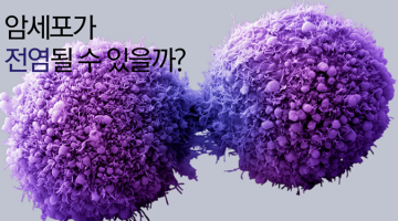 암이 전염될 수 있을까요?