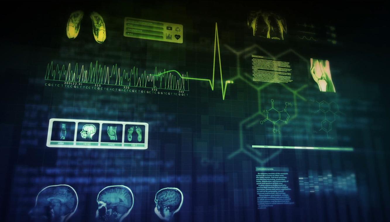 의료 분야로 뻗어 나간 4차 산업혁명, U헬스케어
