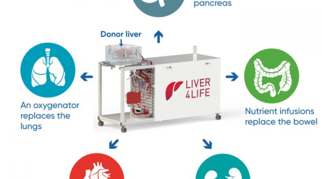 장기 이식의 혁신? 일주일간 이식 간을 유지할 수 있는 관류 장치
